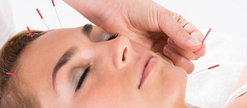 akupunktur i ansigtet